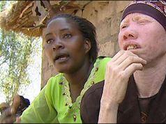 Tanzania bans witch doctors to halt albino murders
