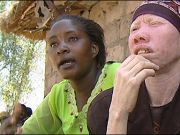 Tanzania bans witch doctors to halt albino murders